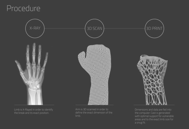 3D Printed Exoskeletons Could Replace Plaster Casts