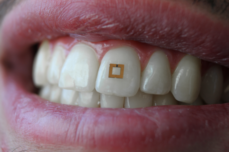 This Gold Sticker On Your Tooth Tracks How Much You Eat